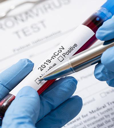 Tests para el diagnóstico de la COVID-19